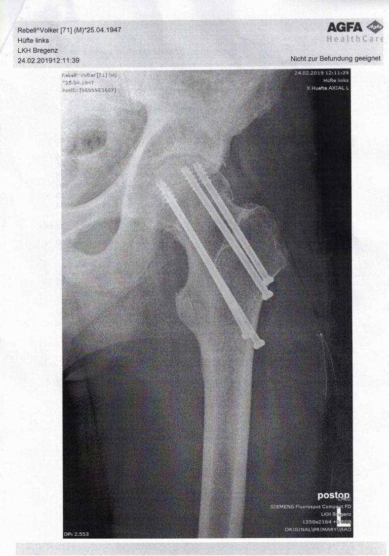 Röntgenbild meiner Hüfte links mit 4 Knochenschrauben